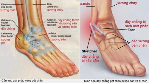 bong gân mu bàn chân