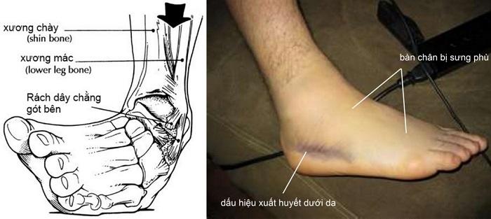 Bong gân cổ chân